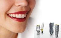 Tối ưu hóa trong kĩ thuật cấy ghép implant