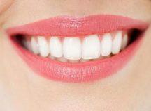 Trồng răng tại Bình Thạnh nên đến bệnh viện Nha khoa KIM