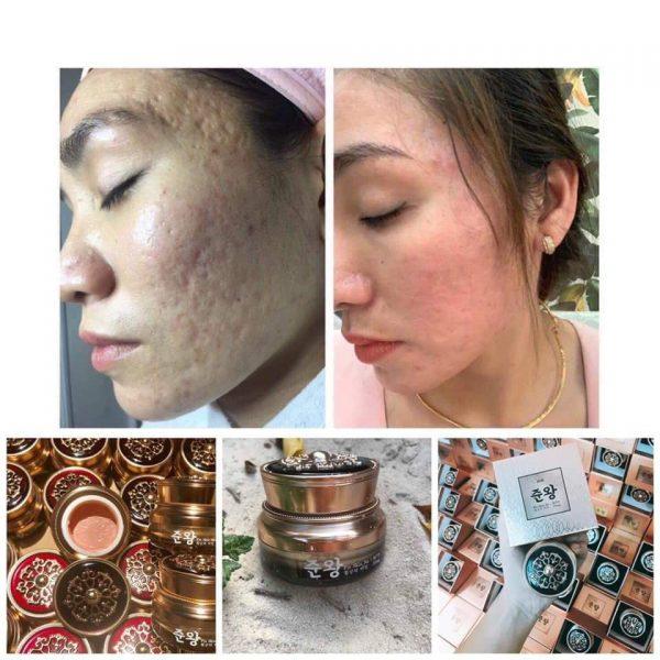 Công dụng chính kem trị sẹo Non Fix Skin genie: